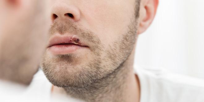 Herpes na ustnici